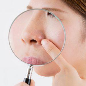 鼻と頬の毛穴
