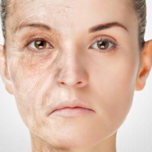 肌が老化する糖化