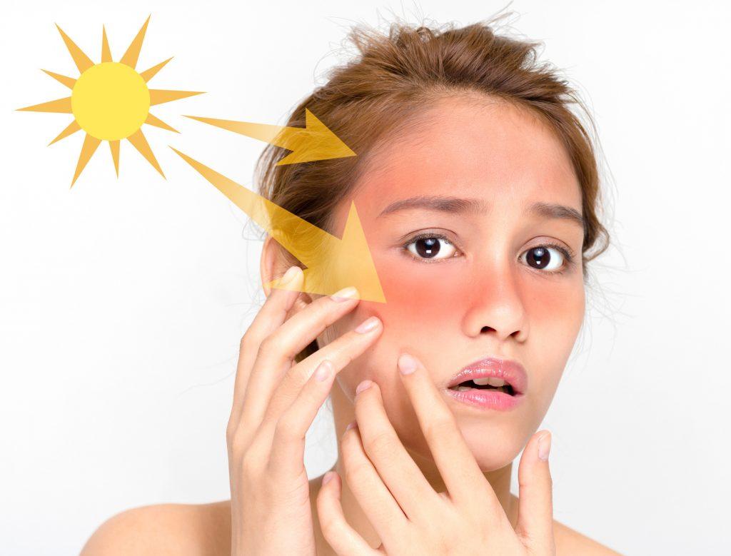日焼けしやすい人の日焼け対策