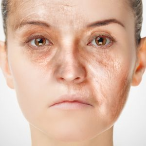 活性酸素が肌老化の原因