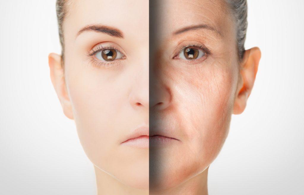 肌老化の原因となる活性酸素