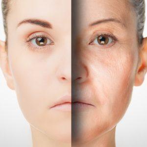 顔のシワ原因は紫外線