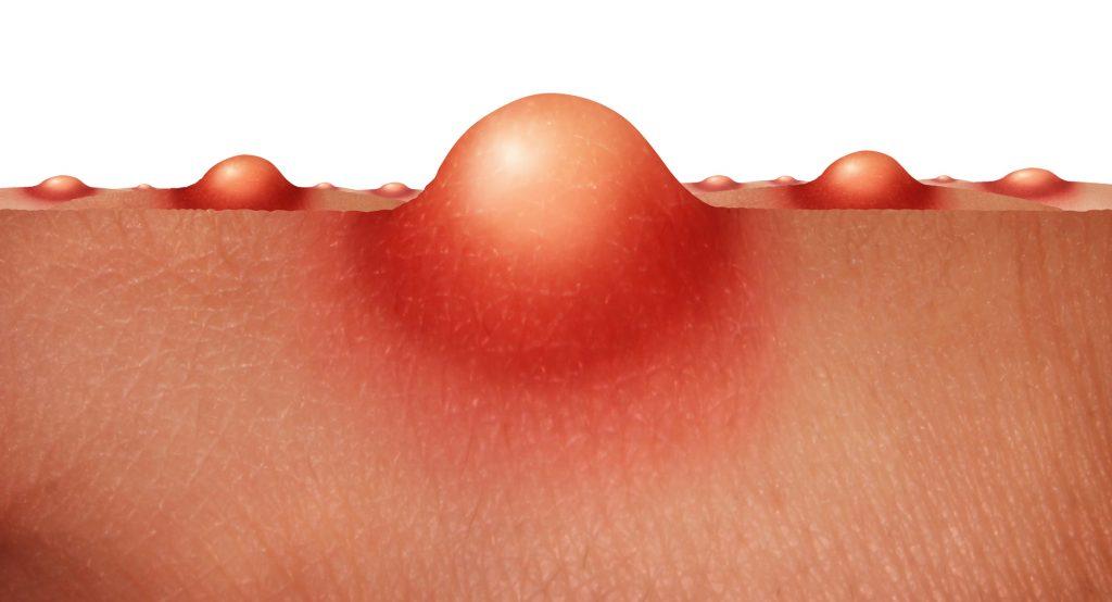 ニキビの原因はアクネ菌